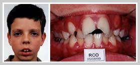 dentição respirador oral